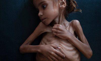 After War In Yemen 7 Year Old Girl Died Under Starvation